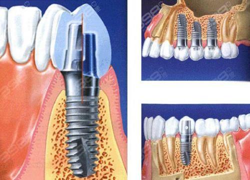 北京哪个医院种植牙比较好?即刻种植牙贵吗?多少钱一颗?