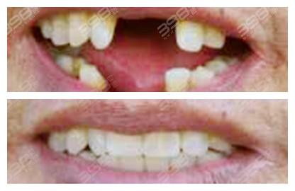 北京佳美口腔种植牙手术前后案例图