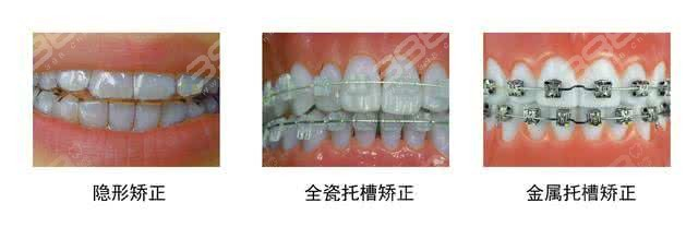 矫正牙套类型