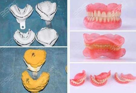 全口吸附性义齿