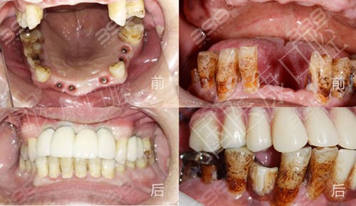 北京国医康口腔门诊部种植牙前后对比案例