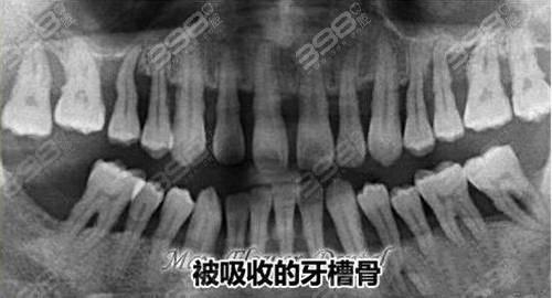 牙槽骨被吸收,无牙颌能做种植牙吗?