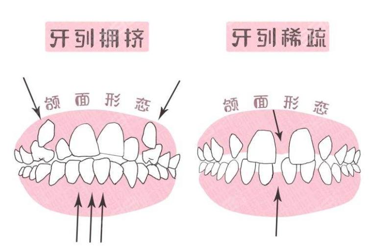 儿童口腔早期干预