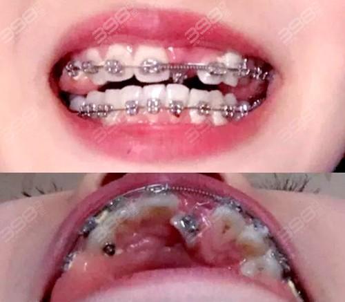 牙齿复杂矫正不易被很多医生拒绝,直到遇到他改变了我