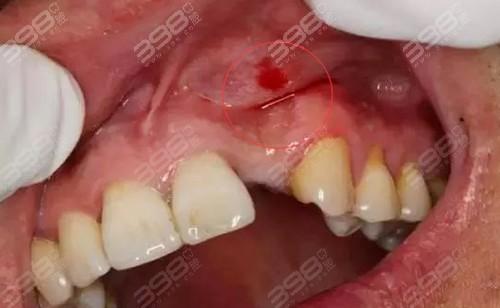 拔牙后多久能种植牙齿
