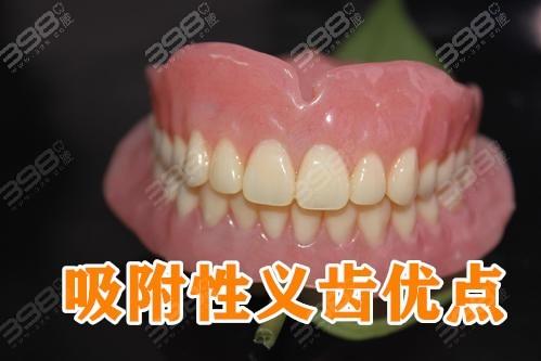 吸附性义齿优点