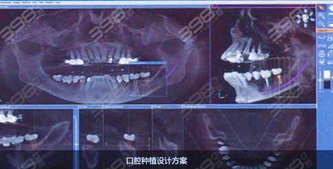 种牙流程是怎么样的