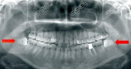 复杂牙拔除ct