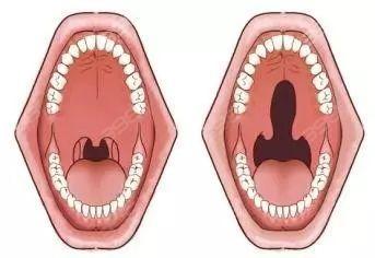 唇腭裂综合示意图