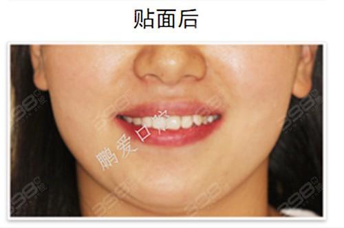 牙齿过小造成牙缝过大怎么办?