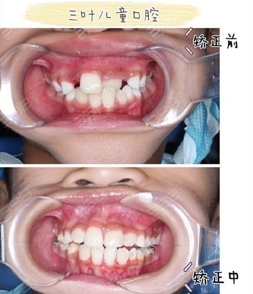 北京三叶儿童口腔诊所儿牙矫正怎么样