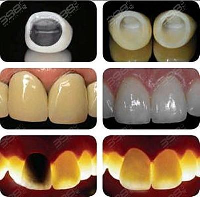 种植牙是怎么收费的?