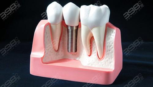 南充哪家种植牙医院好?种牙补骨粉会有风险吗?费用怎样
