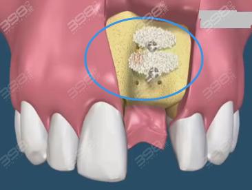 种植牙手术植骨粉有风险吗?