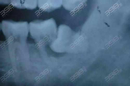 什么样的智齿需要拔掉?