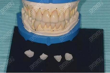 牙贴面取模过程