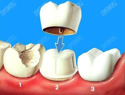烤瓷牙修复过程