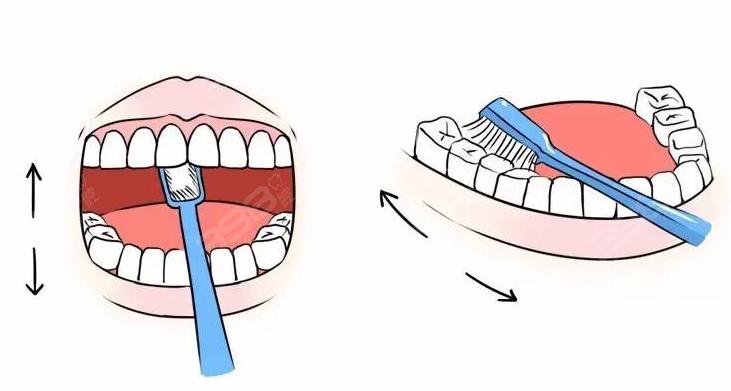 如何预防牙龈炎