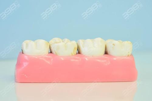 牙龈萎缩的危害有哪些