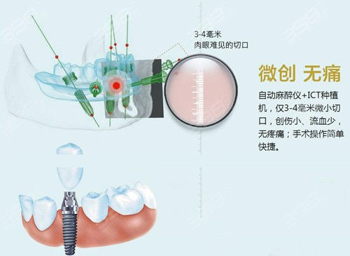 北京微创种植牙技术
