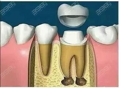 根管治疗后要做牙冠保护起来呢