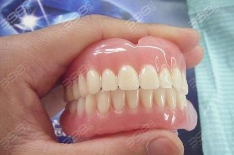 活动义齿修复注意事项