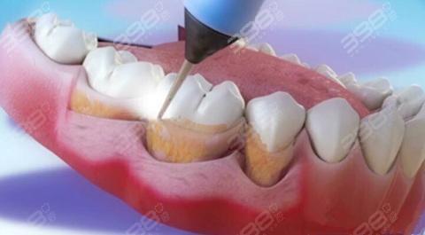 牙科诊所:洗牙的价格为什么从几十到几千?可以用医保吗