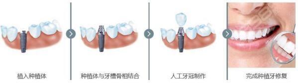 看完种植牙流程再也不怕种植牙有什么风险和后遗症啦!