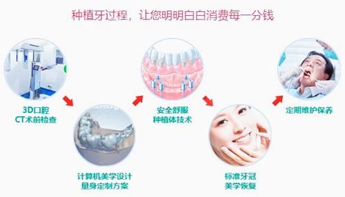 西安画美口腔3D种牙.jpg