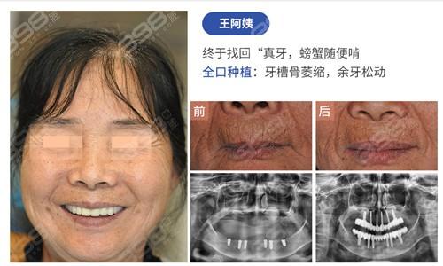 胡晓文医生案例