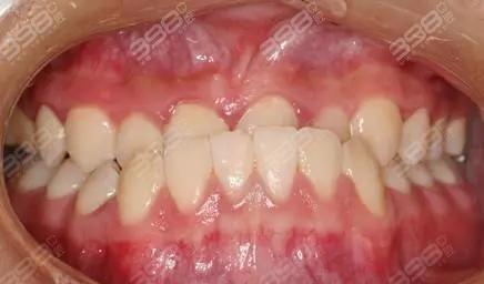 矫治错颌畸形的方法