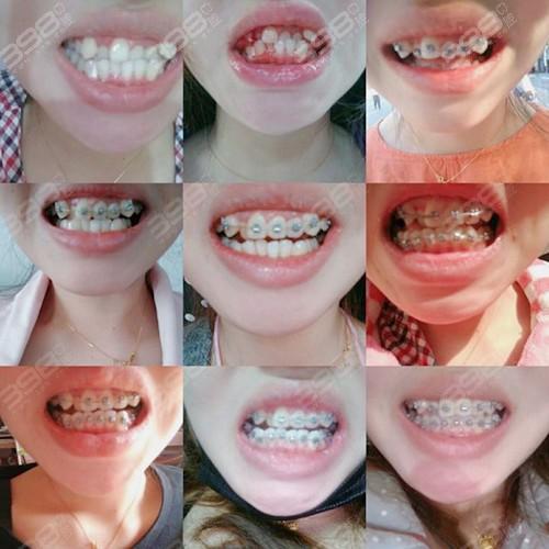 带牙套1~12月变化图