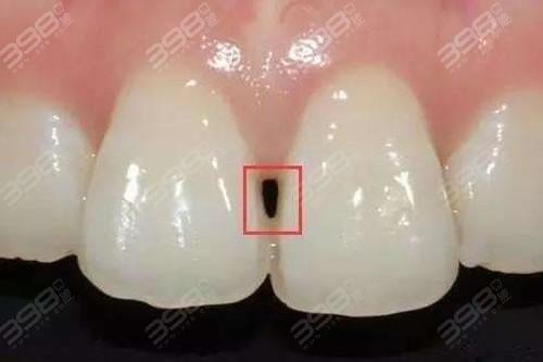 牙齿黑三角怎么办?牙齿矫正会引起黑三角?