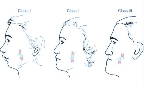 安氏三类错颌畸形矫正