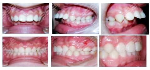 不龅牙,但上嘴唇外凸是什么原因?牙齿矫正能够改善吗?