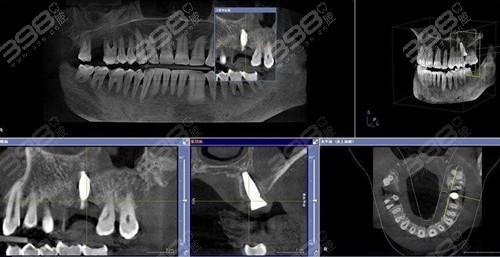 北京种植牙技术好的口腔医院