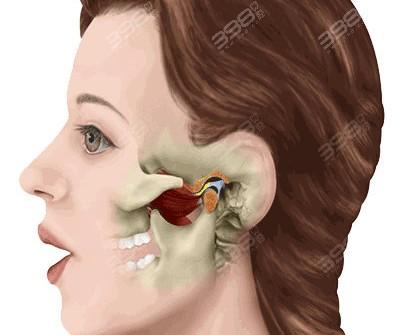 什么是颞下颌关节紊乱?可以正畸吗?