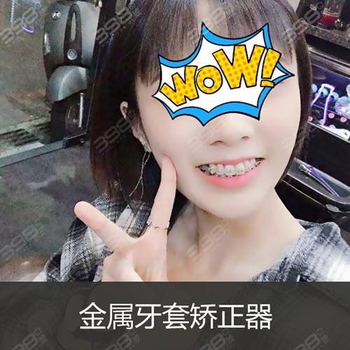北京牙齿矫正技术