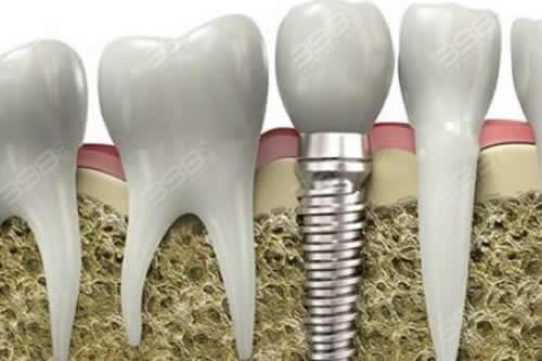 种植牙齿能保持多久?种牙疼不疼?