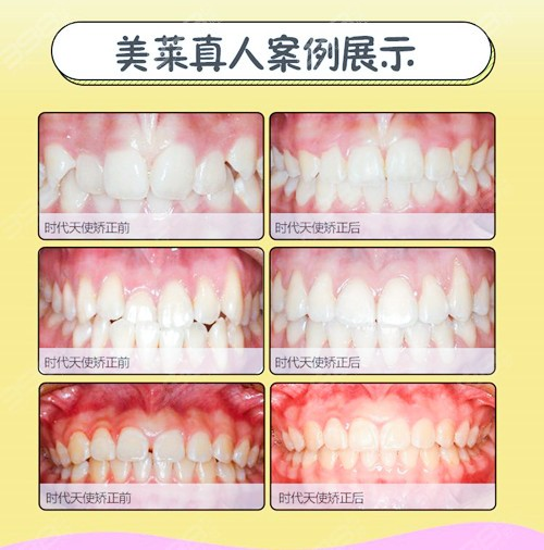 天津牙齿矫正哪位医生好