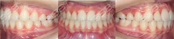 牙齿矫正后