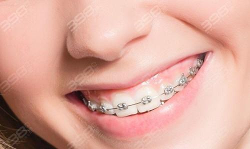 牙齿矫正4900元起靠谱吗?做过牙齿矫正的你们后悔吗?