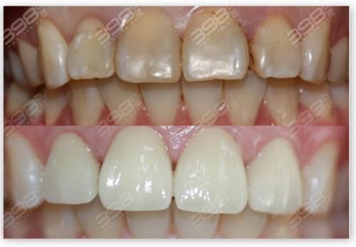 全瓷牙贴面和铸瓷贴面牙齿价格差多少?门牙做贴片好还是做烤瓷牙