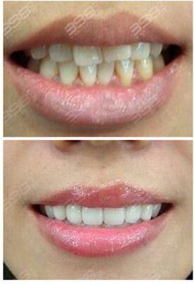 全瓷牙贴面和铸瓷贴面牙齿价格差多少?