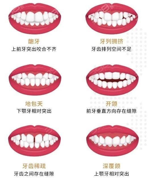 太划算啦!深圳铭德口腔寒假特惠不到5千就能做牙齿矫正