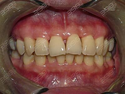 牙周病示意图