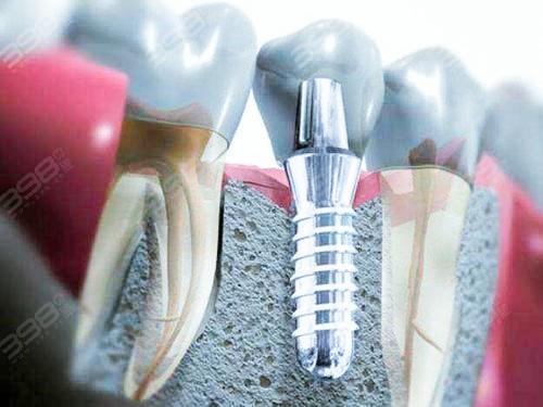 镶牙和植牙哪个比较好?