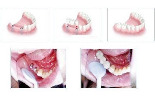 建议镶牙不要种牙是为什么?