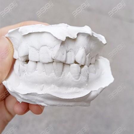 牙膜示意图