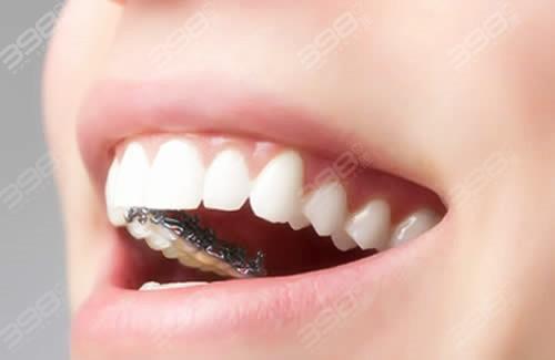 盘点牙齿矫正品牌类型以及牙套费用,看完再也不用担心被坑